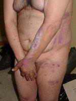 Ìmagen de un preso de Abu Ghraib