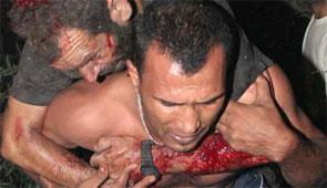 Heridos por el bombardeo israelí