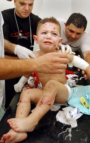 170706 Niño herido por Israel