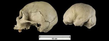 Moldes del cráneo y de la cavidad endocranial de un humano que sufría microcefalía (John Weinstein  / The Field Museum)