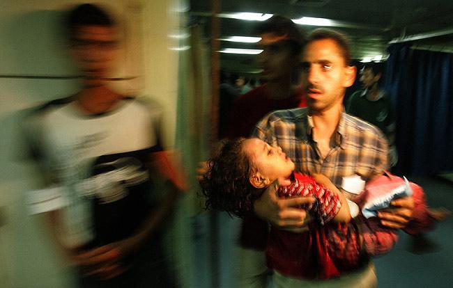 Niña herida durante los ataques israelíes en Gaza de ayer.