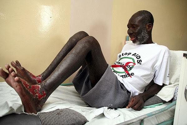 d�a mundial del sida: cáncer