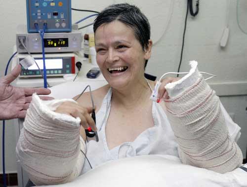 Implante bilateral de antebrazos y manos