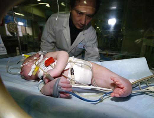 Muere el bebé sirena chino