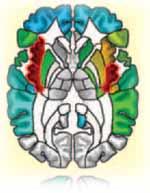 La ínsula (en rojo) vista desde arriba