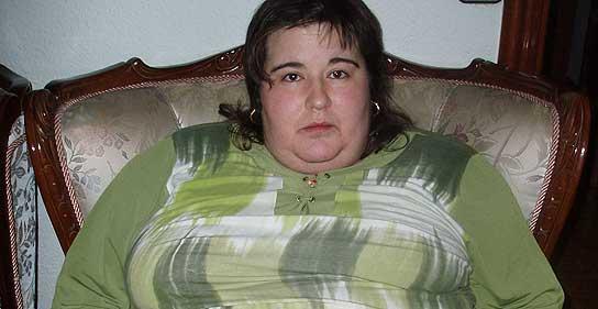 Obesidad mórbida
