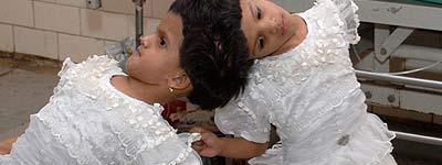 Vani y Veena, las siamesas indias de cuatro años