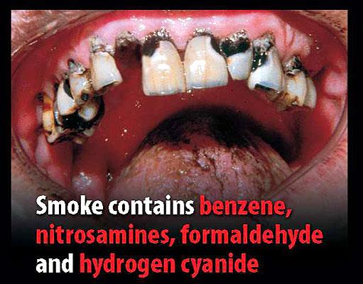 Campaña contra el tabaco