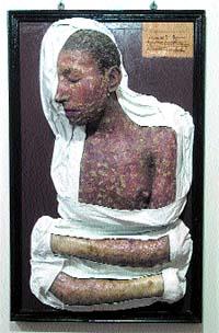 Medicina digna de museo