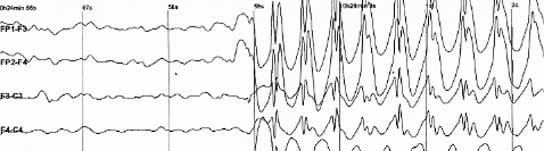 Esos chips podrían 'interpretar' señales y estimular las neuronas.