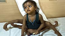 Lakshmi: una niña hindú con ocho extremidades