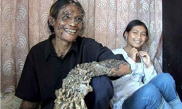 """Detalle de Dede, el pescador indonesio conocido como """"hombre árbol""""."""