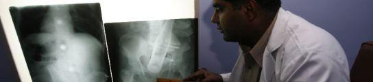 El médico muestra la radiografía del abdomen del hombre (REUTERS)