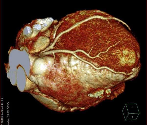 Imagen de un corazón, con el nuevo sistema de Philips
