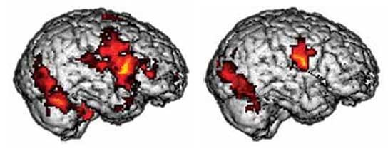 Comparación entre cerebros