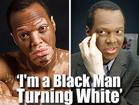 52fd5b021311 El hombre negro que se vuelve blanco