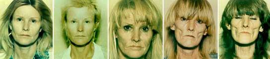 Una cara que refleja varios años de adicción a las drogas.