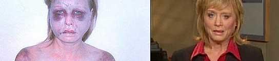 Angela Garbarino tras la agresión y en la actualidad