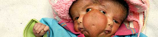 La niña india nacida con dos caras en la India.