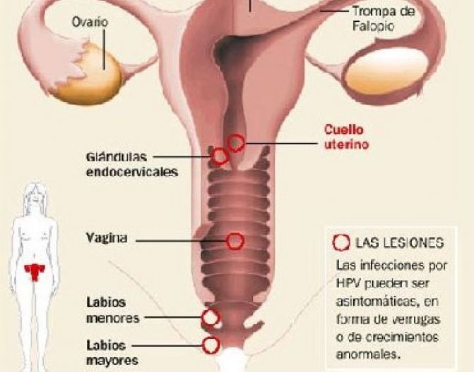 La vacuna contra el cáncer de cuello de útero, gratis en España ...
