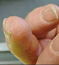 Dedo regenerado