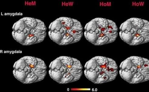 Cerebros masculinos y femeninos