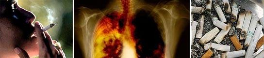 Un sensor con nanopartículas de oro ayudará a detectar el cáncer de pulmón  (Imagen: ARCHIVO)