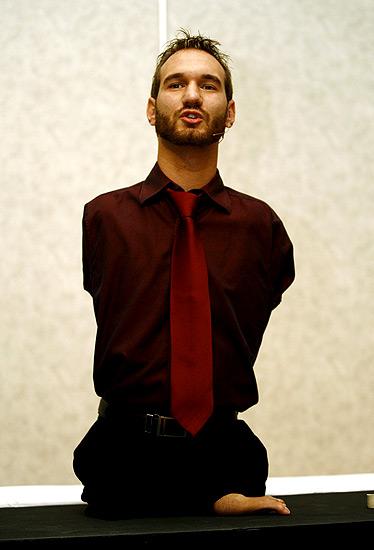Motivador sin extremidades (6/2/2009). Nick Vujicic, un australiano nacido sin extremidades, imparte una conferencia sobre motivación en San José de Costa Rica.