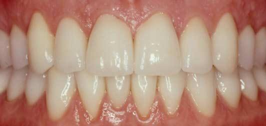 por qué resisten tanto nuestros dientes