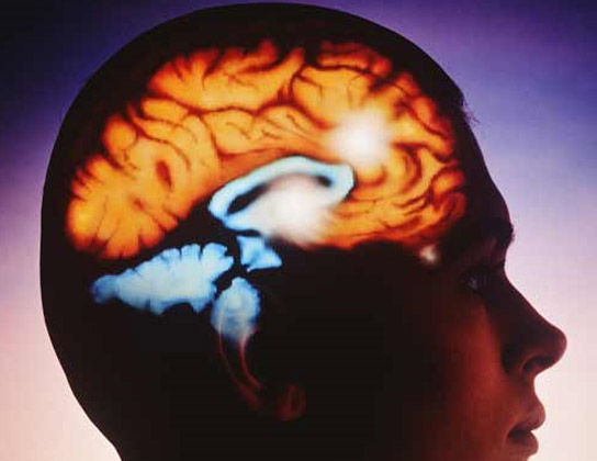 Una recreación de un corte cerebral