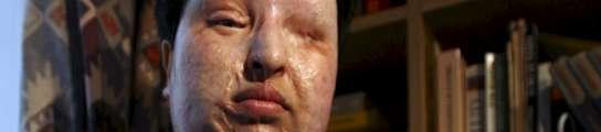 Una víctima iraní de maltrato aplicará el 'ojo por ojo' al hombre que la cegó con ácido