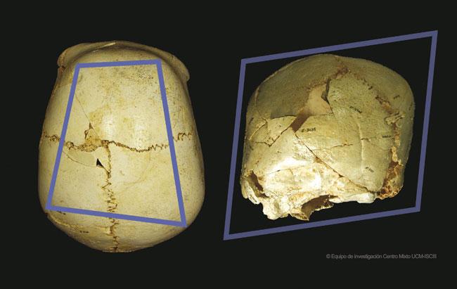 Hallan en Atapuerca el cráneo de un niño con una rara enfermedad ...