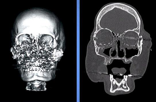Radiografías de Connie Culp