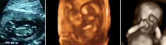 Distintas imágenes de un feto de 13 semanas.