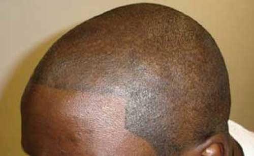 tatuajes marinos. Una empresa británica ha desarrollado un tatuaje 'médico' que replica el