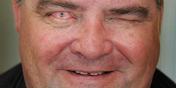 Un hombre recupera la vista gracias a una lente incrustada en un diente