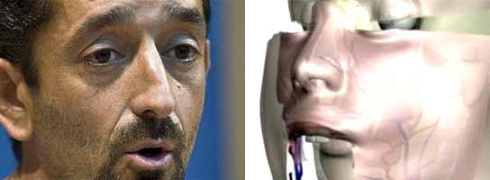 Trasplante de cara (doctor cavadas y simulación)