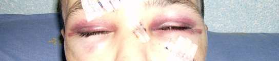 Joven supuestamente agredido por un grupo neonazi