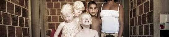 Hermanos albinos