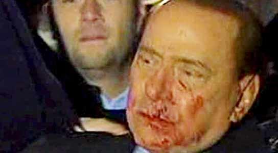 Belusconi hospitalizado tras recibir un golpe en la cara con una barra de acero 1028641