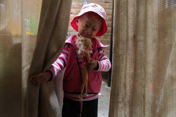 Mariella, enferma de progeria