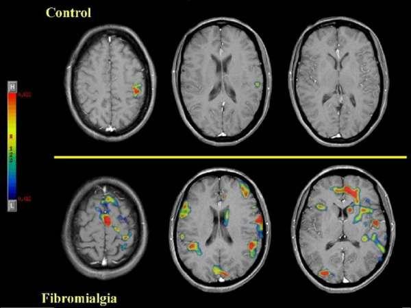 La SVR destaca que nuevas técnicas demuestran que el dolor en los pacientes con fibromialgia es