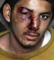 Un herido en Egipto