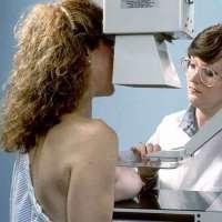 Las unidades móviles de mamografías del SES citan a 3.671 mujeres en abril
