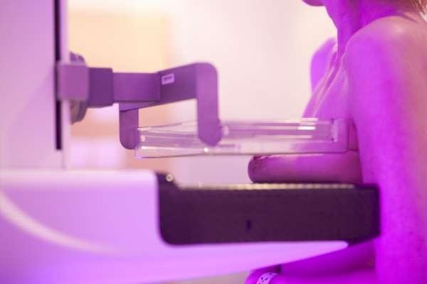 Las unidades móviles de mamografías del SES citan a 3.792 mujeres en mayo