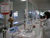 Andalucía, en el primer ensayo mundial sobre el uso de sangre de cordón umbilical para tratar VIH y cáncer hematológico