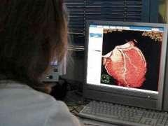 Un estudio liga el consumo de antiinflamatorios como el ibuprofeno con fallos cardíacos