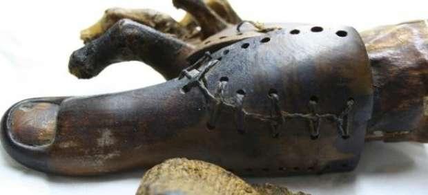 Las prótesis más antiguas