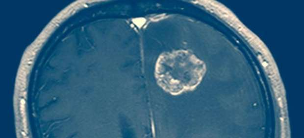 Tumor cerebral