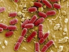 Bactería Escherichia coli